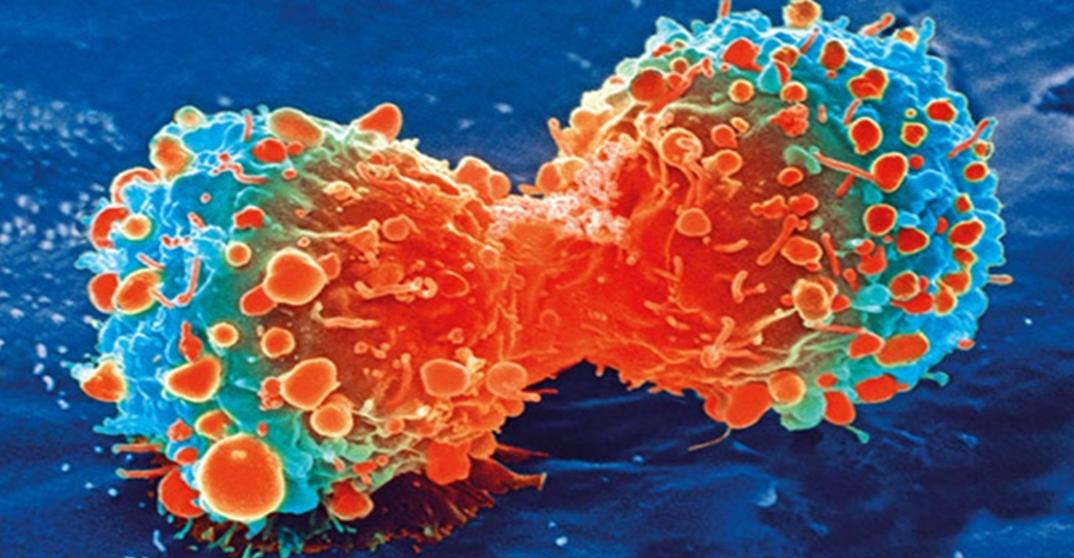 cremas-contra-el-cancer-adios-quimioterapia-cosmeticaonco