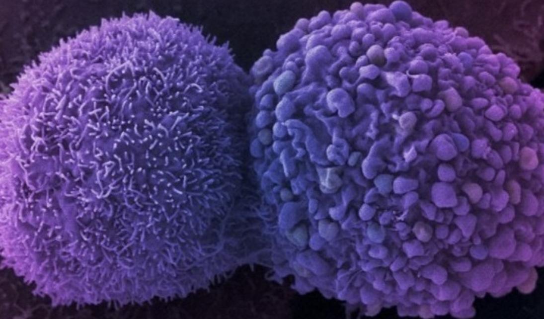 cremas-contra-el-cancer-pembrolizumab-contra-el-cancer-cosmeticaonco