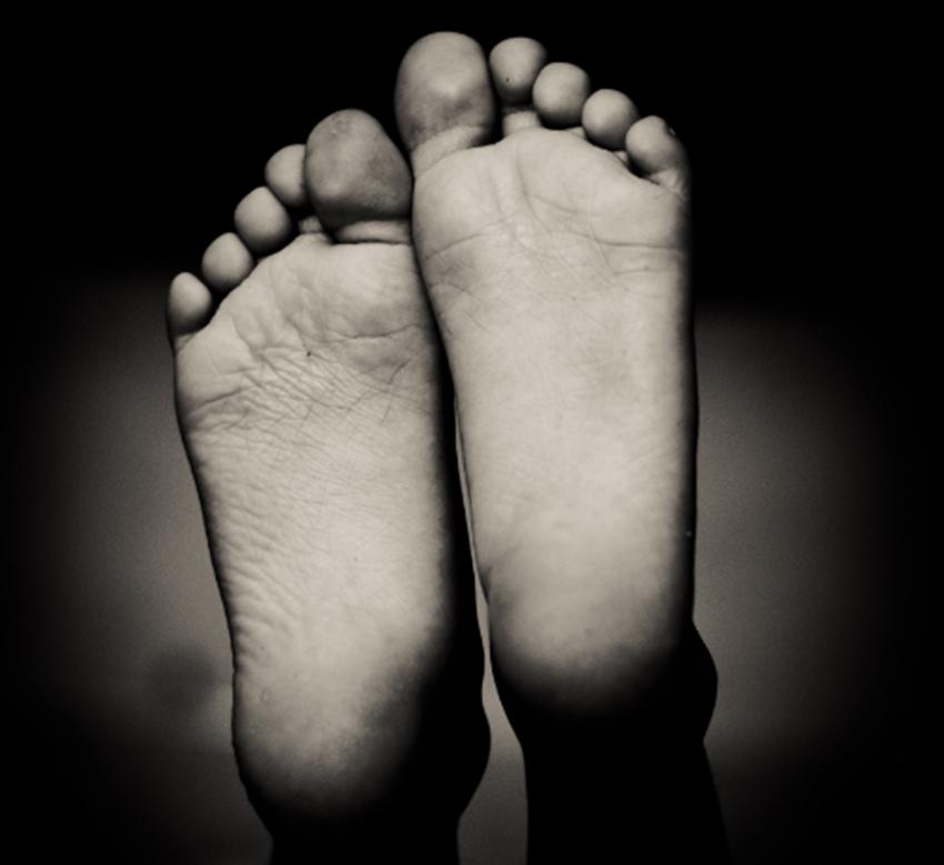 Cremas contra el cáncer. pies y manos peladas.cosmeticaonco