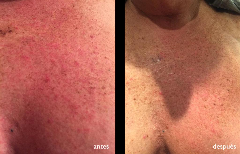 escote antes y después del tratamiento